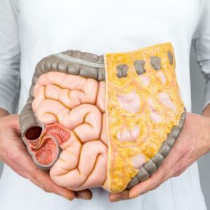 What you should know about bowel/colon cancer.
